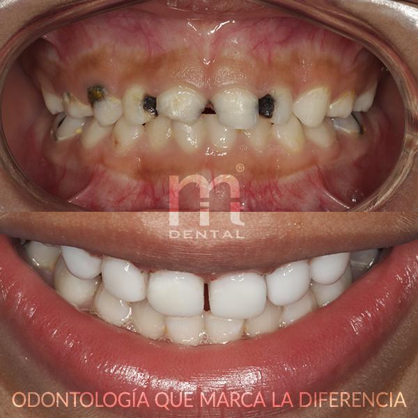 Dentsita para niños en Barcelona