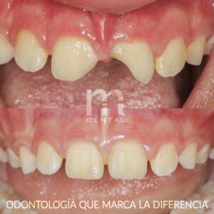 Reconstruccion de diente roto de niño
